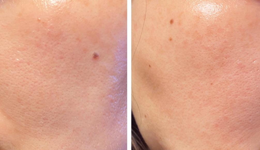 ヒト幹細胞培養液コスメ アフター 肌の写真