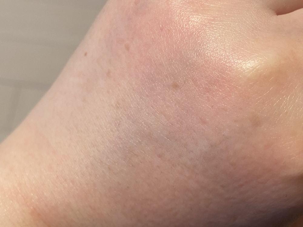 トリア スキンエイジングレーザー 使用後の肌