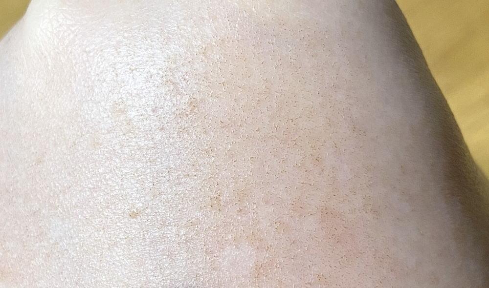 トリア スキンエイジングレーザー 使用後の肌 カサブタ