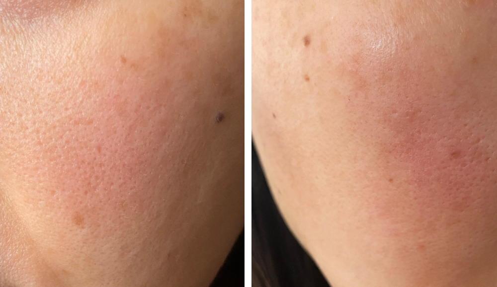ヒト幹細胞培養液コスメ ビフォー 肌の写真