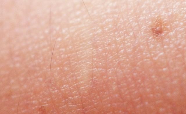 フラクショナルレーザー 効果 皮膚 変化